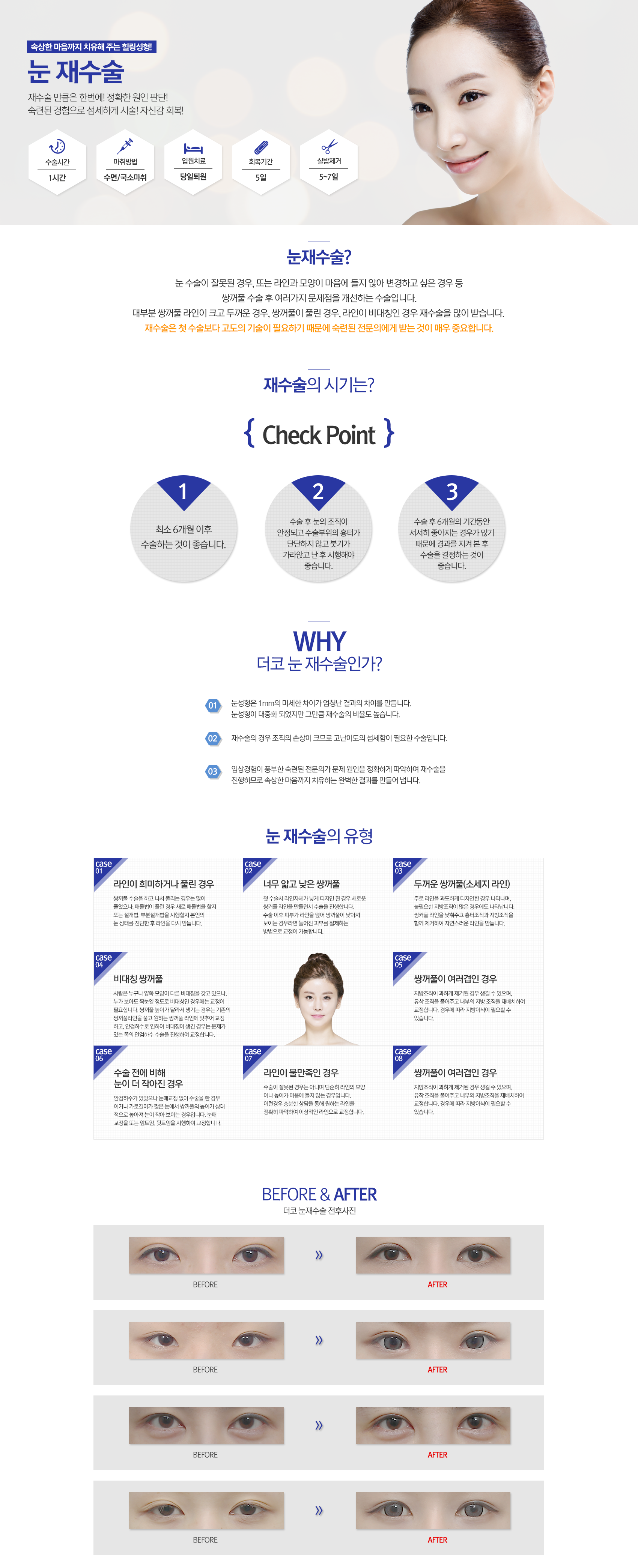 contents-눈,코,가슴,v-line리프팅_01.png